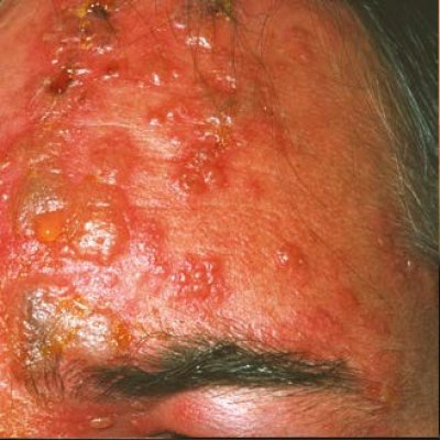 Pásový opar: jak souvisí s neštovicemi a jak se léčí?